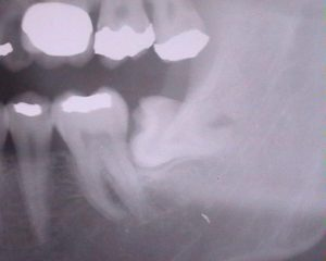 水平埋伏知歯